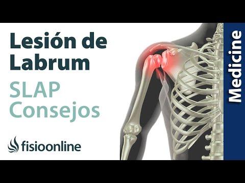 Trastornos autónomos en osteocondrosis cervical