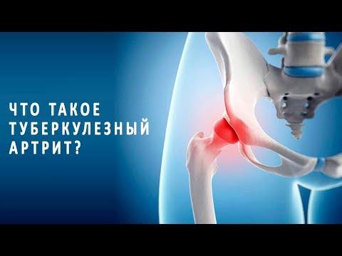 Что нужно знать о туберкулезном артрите
