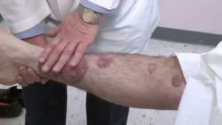 A guide for patients: Treatments for psoriasis
