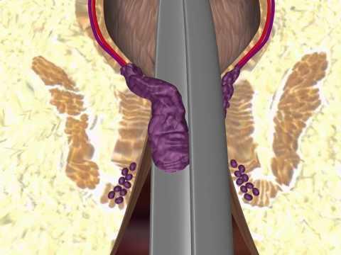 Projímadlo pro prostaty