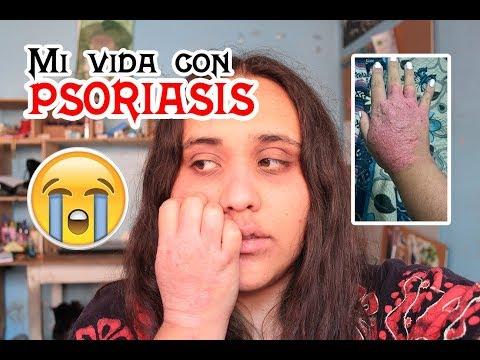 La diagnosis de la psoriasis por la análisis de sangre