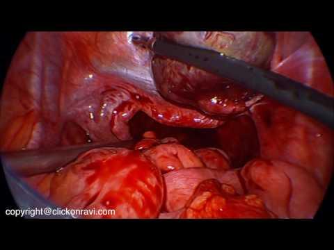 Laparoskopowa resekcja torbieli jajnika