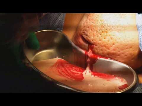 Como cambiar a menudo implanty los pechos