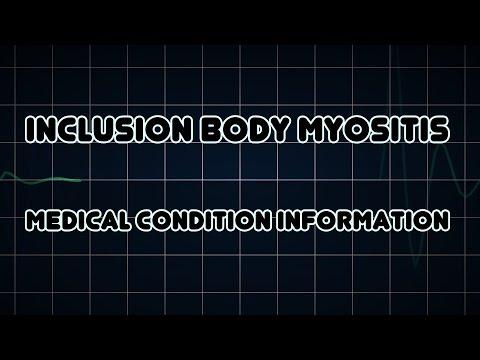 Ízületi ízületi gyulladás és hypothyreosis