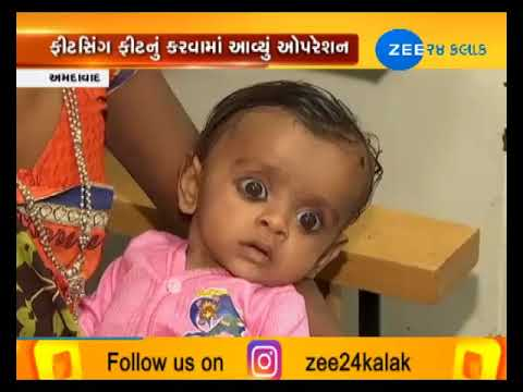 Ahmedabad: Civil Hospital Doctor team successes in 7th month old children operation-ZEE 24 KALAK