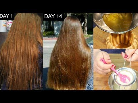 Matapos hair transplant sa tunay na kawalan ng ulirat