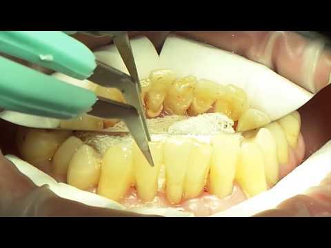 Хирургическое пародонтологическое лечение. Базовый курс. Часть 6