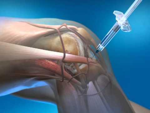 Artroza tratamentului membrelor inferioare