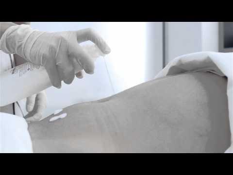 Cum să efectueze masaj de prostata
