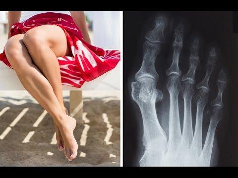 ความผิดปกติของกระดูกเท้า