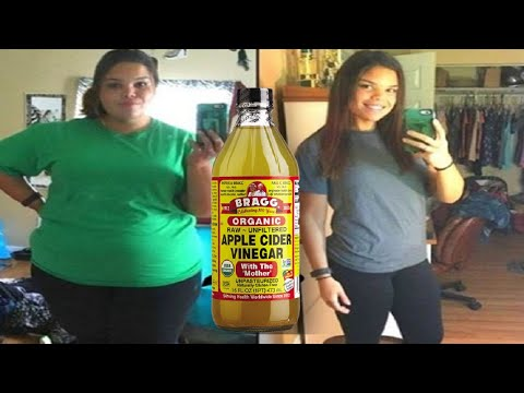 Video How to Use Apple Cider Vinegar for Weight Loss
