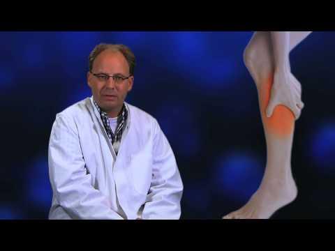 Das Klemmen des Nervs in der Lende tut den Bauch weh