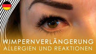 Allergien und Reaktionen auf die Wimpernverlängerung. Geschwollene Augen. Rote Augen. #yaLASHesCLUB