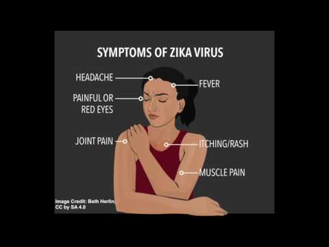 Video Zika Virus: Symptoms and Diagnosis