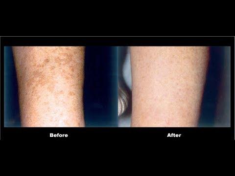 Freckles sa mga bata