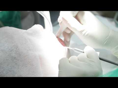 Профессиональная Чистка Зубов. Профилактика Кариеса.Говорит Эксперт