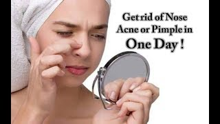 How to get rid of nose pimples fast | Nose acne treatment | Natural and Effective method