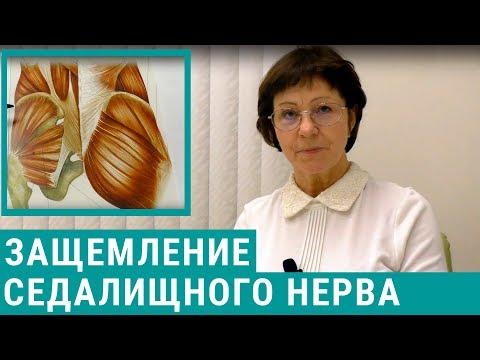 Защемление седалищного нерва: симптомы и лечение ущемления седалищного нерва