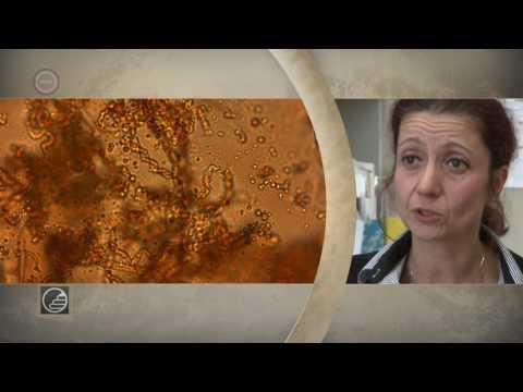 Paraziták kezelése elecampanokkal