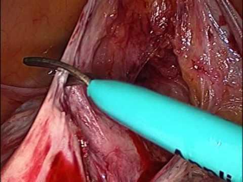 ที่ไม่ได้รับการผ่าตัดเพื่อเอาเส้นเลือดขอดของขา