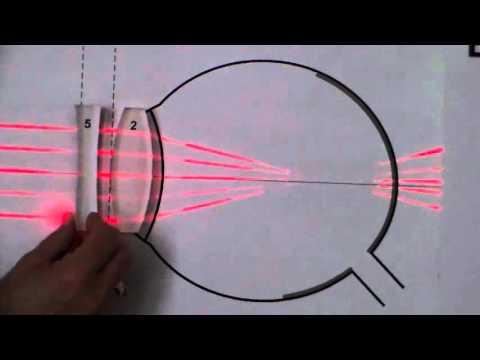 Какие анализы надо сдать перед коррекцией зрения