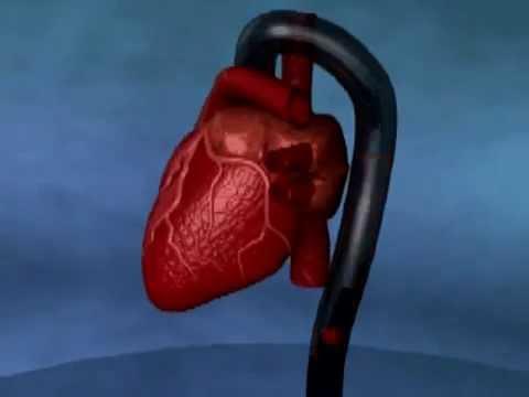 Herzinsuffizienz - Lehrvideo der Dr. Rath Gesundheits-Allianz