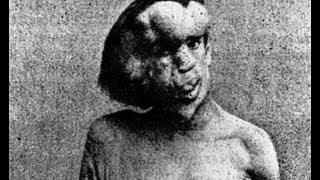 LA INCREIBLE HISTORIA DEL HOMBRE ELEFANTE. Joseph Merrick. Síndrome de Proteus