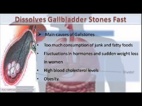 Video What Dissolves Gallbladder Stones Fast And Naturally?
