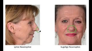 Die Nase 2