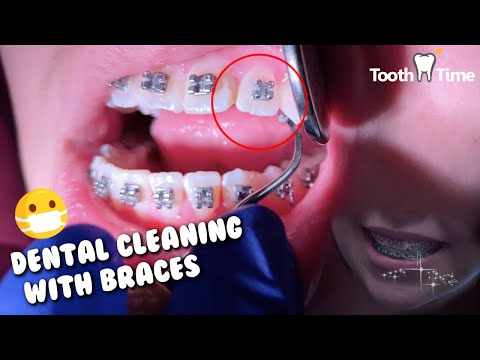 Dental Cleaning with Braces - Braces checkup and Cleaning appointment same day - Tooth Time