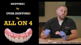 Dentures vs. Snap -in Dentures vs. ALL on 4 ®️ Bridge