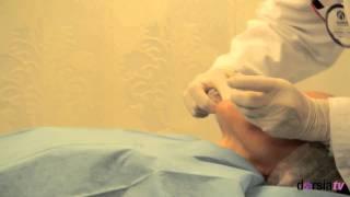 Tono - Luminosidad facial -Rejuvenecimiento facial - Clínica Dorsia Benidorm