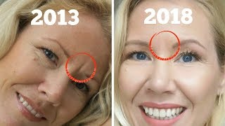 How To Get Rid Of Frown Lines Between Eyes | BEAUTY OVER 40