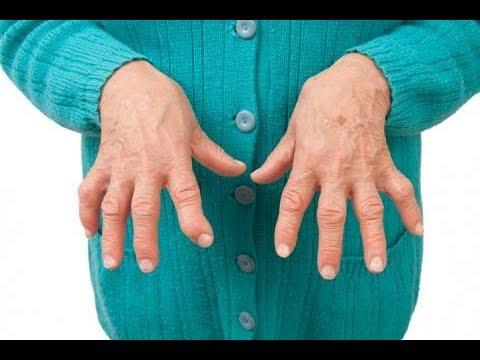 La estenosis de los síntomas y tratamiento arterias carótidas