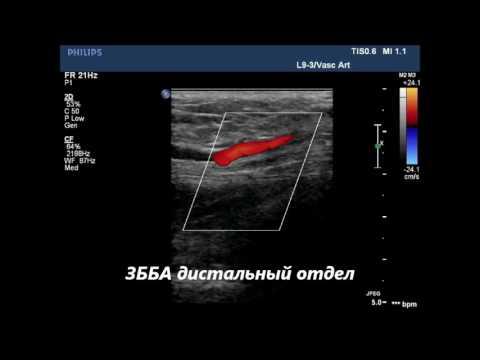 Окклюзия подколенной артерии