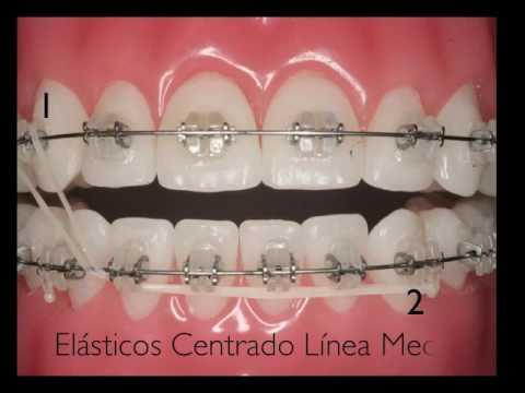 Uso de los elásticos en Ortodoncia Fija