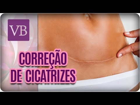 Cirurgia do cancro da próstata fase 1 como fazer