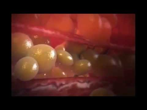Les préparations médicinales contre les thromboses