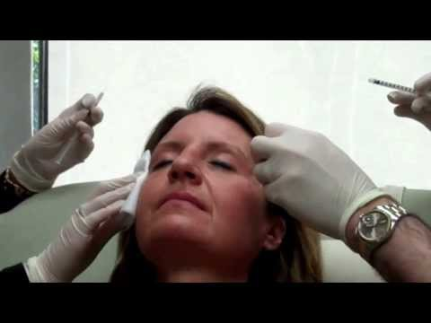 Easy Treatment Botox Injections with Dr. Seiler
