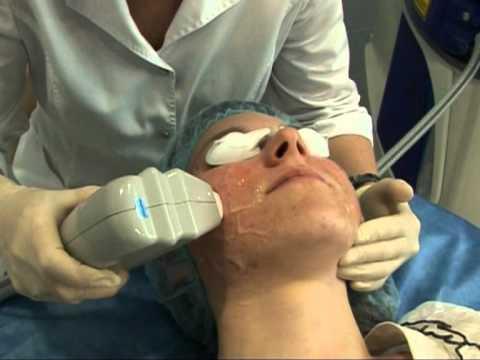 Линзы для восстановления зрения на ночь