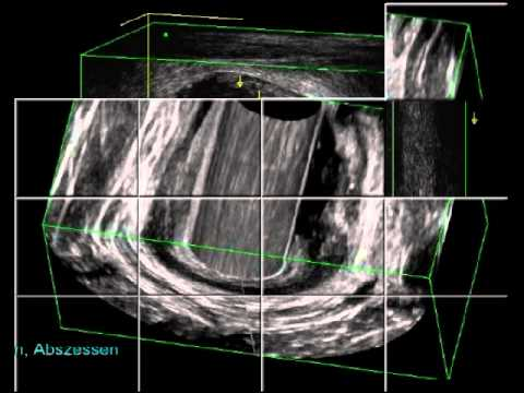 Behandlung von Prostatitis Infrarot