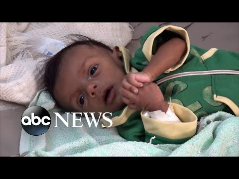 Yemen on the brink of starvation