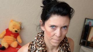 ״אני בת 20 אבל נראית כמו בת 60״. צפו באישה הצעירה הלוקה בתסמונת הנדירה >>