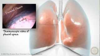 Pleural Space: Part 1 of 3 [HD]