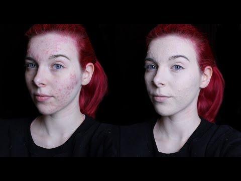 Die Gelatine von der Pigmentation auf der Person