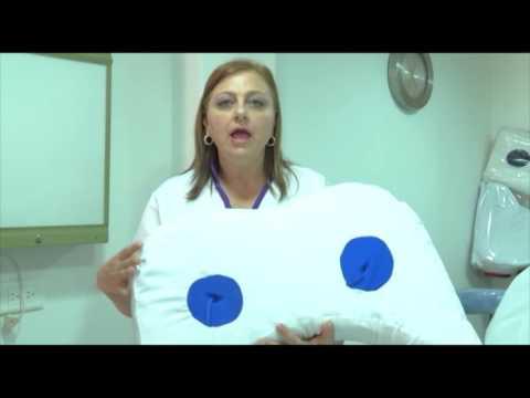 Tratamiento del foro cervical enfermedad degenerativa del disco