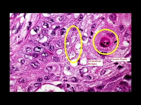 Virus papiloma como eliminar