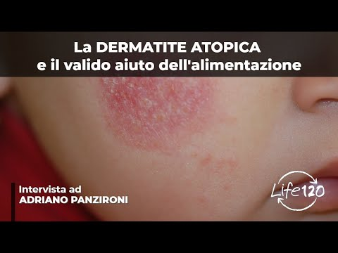 Dermatite di atopic a bambini di video