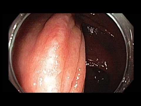 Scar Evaluation after EMR and Cancer Removal