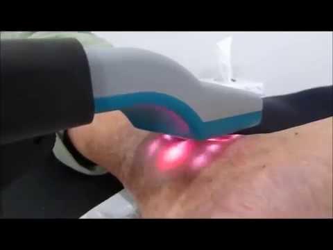 Esercizi fisici per il collo osteochondrosis